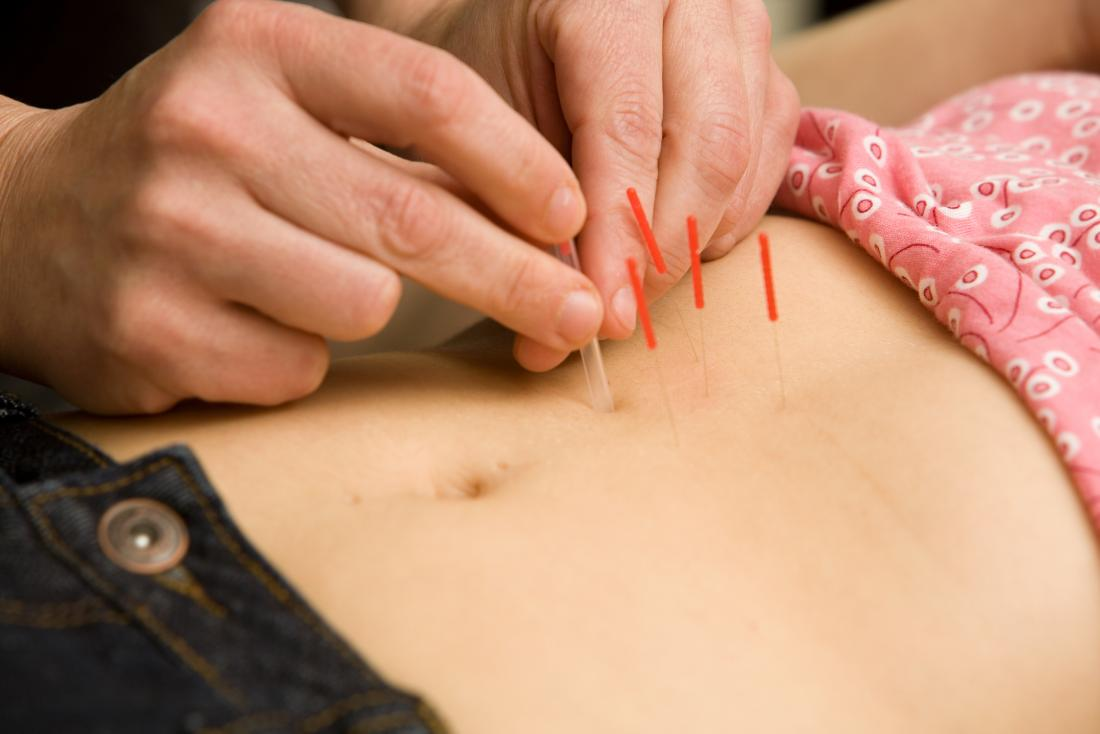 Acupuncture being applied to persons stomach