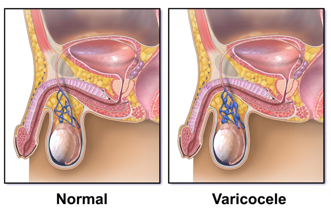 "Diagram of a varicocele <br />Image credit: BruceBlaus, 2015</br>""><br /><em>Varicoceles affect about 10 to 15 percent of men. <br />Image credit: BruceBlaus, 2015</em></div><p>A varicocele occurs when a bulge results from enlarged veins inside the scrotum. The swelling typically resembles an enlargement above the testicle, without discoloration.</p><p>The pampiniform plexus is a group of veins inside the scrotum. These veins help cool the blood before it travels to the testicular artery, which supplies the testicles with blood.</p><p>If the testicles are too hot, they cannot make healthy sperm. Sperm health affects fertility, so it is essential that the veins can cool down the blood.</p><p>Most people with a varicocele do not have symptoms, but some may experience fertility issues.</p><p>When someone has a varicocele, they may also experience swelling and tenderness of the scrotum.</p><p> <span class="