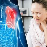 Lung cancer warning – why you should never ignore these common symptoms