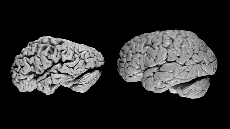 the brain of a person with Alzheimer's disease sits next to a normal brain