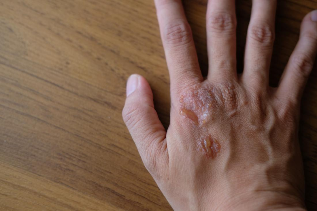 Psoriasis on the hand