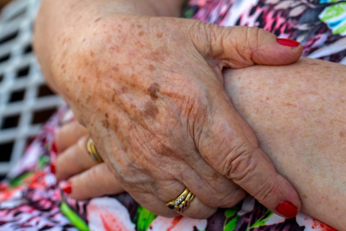 dark spots on a womans skin