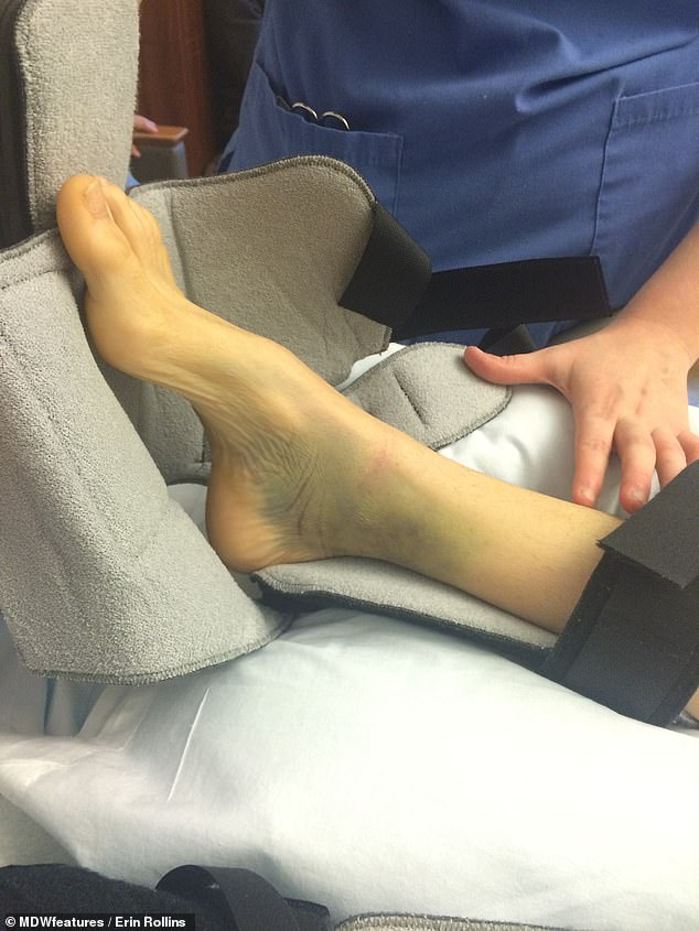 Mrs Rollins foot was damaged in the car crash.She is now able to walk independently but requires braces on her feet as certain nerves and muscles don't work