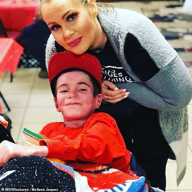 Melissa Jaquezwas accused of burning her sons after a rare skin condition left them with severe blisters. The mother-of-three is pictured with her sonMarcos Jordan Burrola-Jaquez, aka Marky The Rock, who suffers fromrecessive dystrophic epidermolysis bullosa