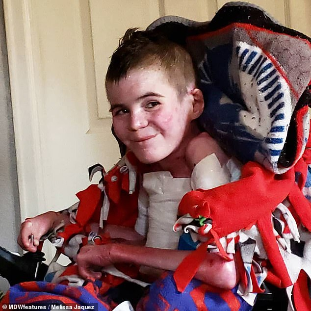Despite all he has endured, Marky smiles through the pain and manages to stay positive