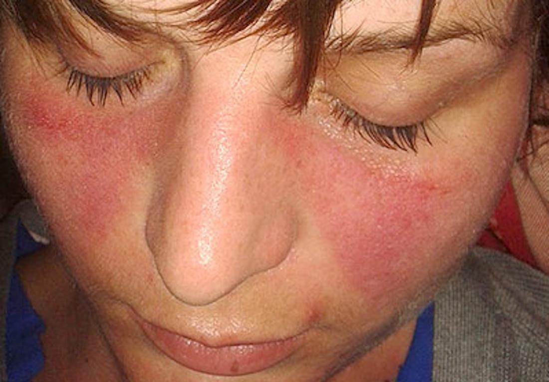 a malar rash is a symptom of lupus image credit doktorinternet 2013