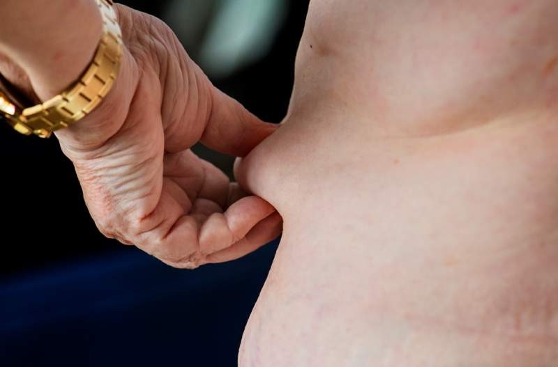 closeup-of-obese-elderly-woman