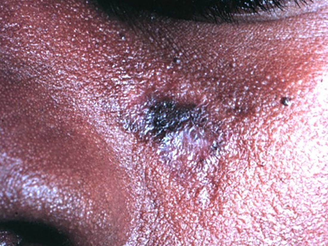 cutaneous lupus br image credit leonard c sperling m d col mc usa department of dermatology uniformed services university 2009 br