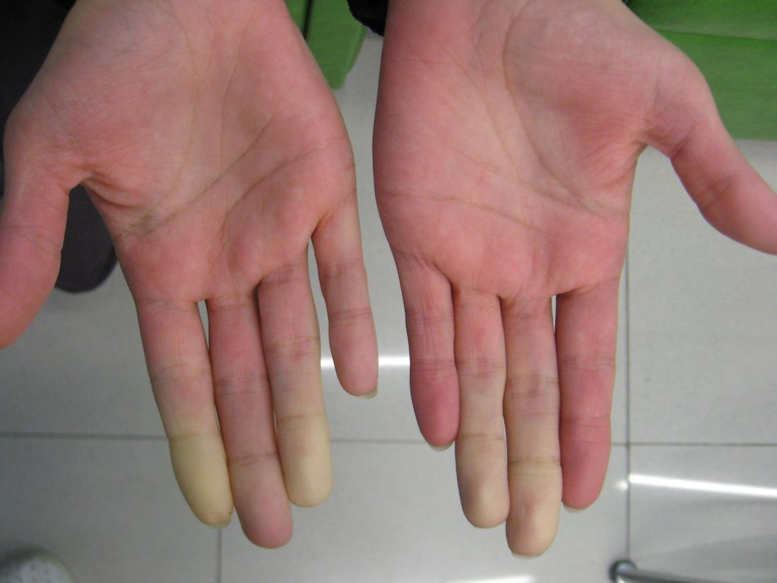 raynaud s disease in the hands br image credit intermedichbo 2010 br