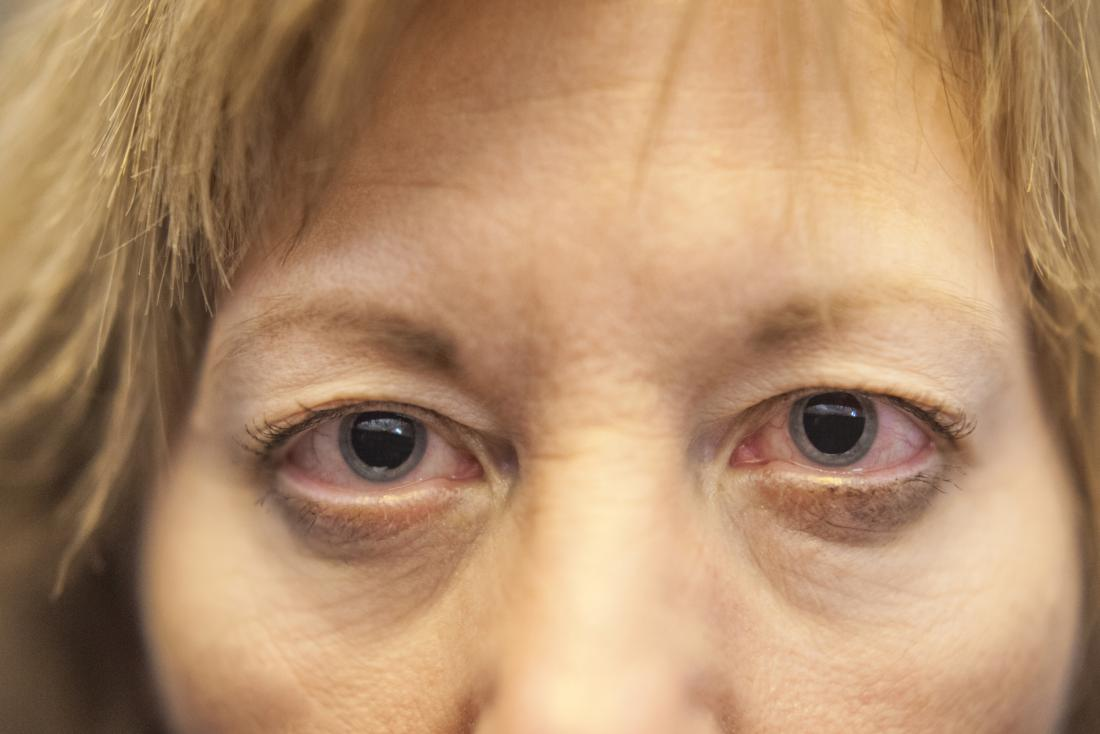 the eyes can become red and irritated