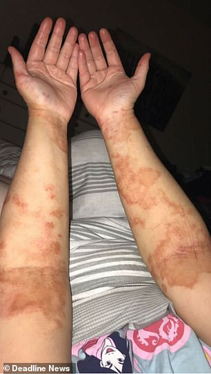 Miss Kennedyposted a picture of her red, scratch-marked arms on social media to highlight how severe her eczema was