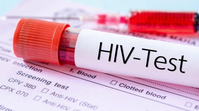 HIV test thegrio.com