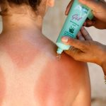How to get rid of sunburn? Top tips and treatments for redness and blisters
