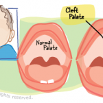 Cleft Palate With Cleft Lip