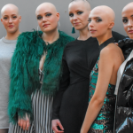 How One Entrepreneur Is Creating A Global Online Community For People With Alopecia