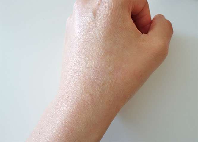 My left hand before starting to apply rosehip oil regularly