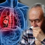 Lung cancer symptoms: What are the eight common signs you could be at risk?