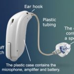 Understanding the various parts of a hearing aid