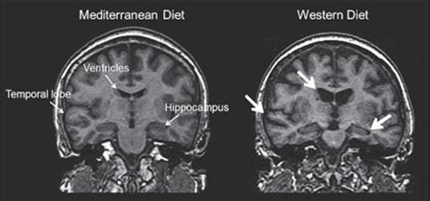 brain-food-mri-scans-620.jpg