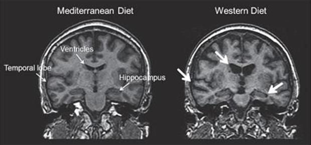 brain-food-mri-scans-620.jpg