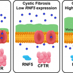 Modifier Gene May Explain Why Some with Cystic Fibrosis are Less Prone to Infection