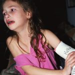 What's the Best Treatment for a Child's Broken Bone?