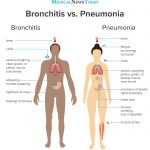 Medical News Today: Is it bronchitis or pneumonia?