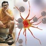 Bowel cancer symptoms: What shape are your stools? Sign of the deadly disease